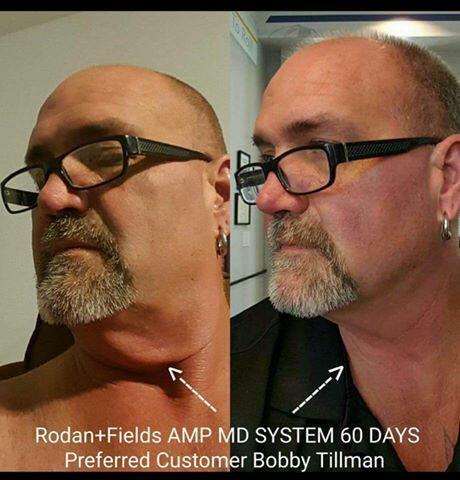 Amp md system fdating